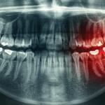 Filling Cavities