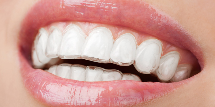What Are The Types Of Braces