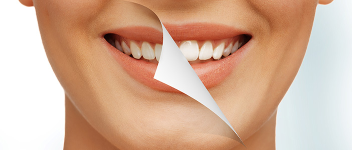 10 Tips for Healthy, White Teeth - Biermann Orthodontics