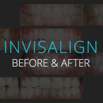 Invisalign Before & After - Biermann Orthodontics
