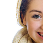 12 Things You Should Know Before Getting Braces - Biermann Orthodontics