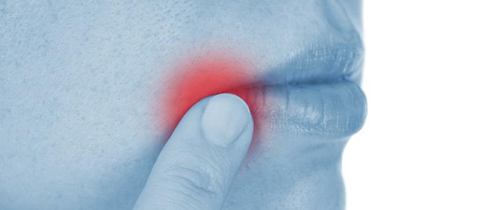 Mouth Sores - Stomatitis