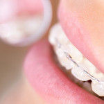 Tips for Keeping Braces Clean