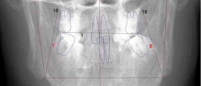 Orthodontic Case Study