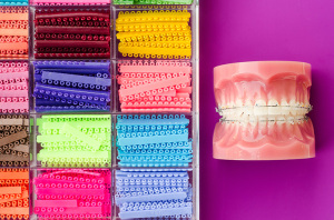 Misconceptions About Orthodontics | Biermann Orthodontics