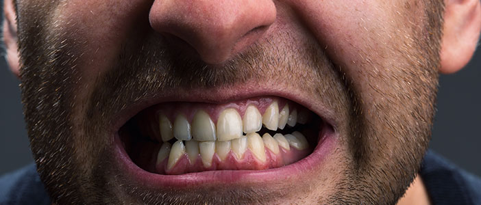 19 Habits That Wreck Your Teeth - Teeth Grinding - Biermann Orthodontics