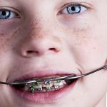 About Headgear - Biermann Orthodontics