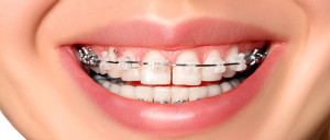 7 Tips to Prevent Ceramic Braces From Staining