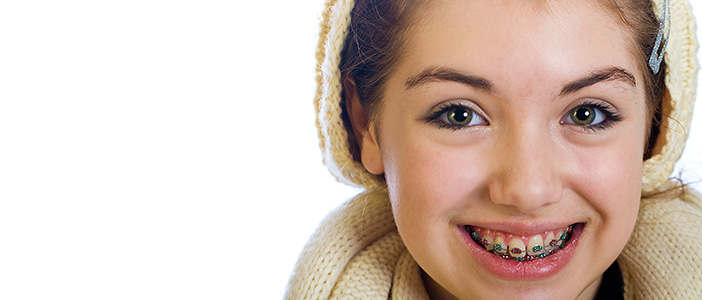 12 Things You Should Know Before Getting Braces - Biermann