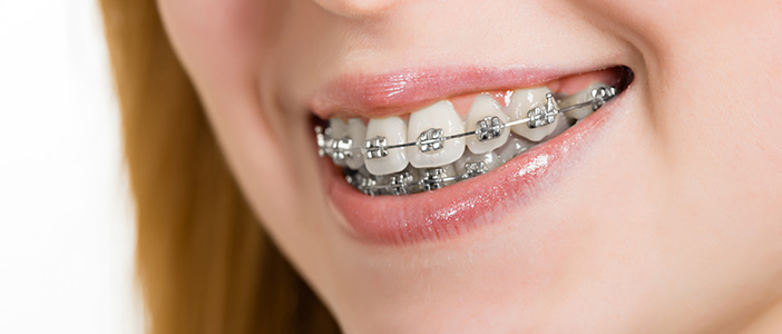 When Should I Get Braces?