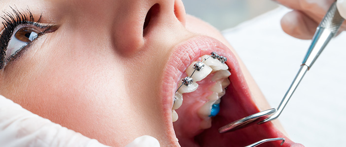 White Spots on Teeth During Orthodontic Treatment