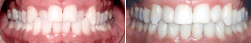 Crossbite Fixed with Invisalign