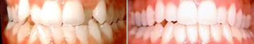 Overcrowded teeth fixed with Invisalign