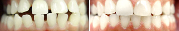 Gapped Teeth Fixed with Invisalign